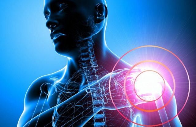 Tendinitis en el hombro, una de las dolencias más comunes de nuestros clientes